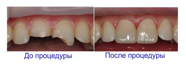 отбеливание зубов лампой zoom